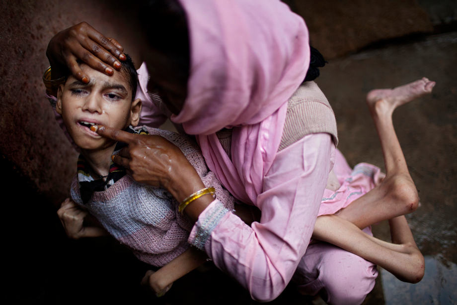 The mother of Samir, 14, a severely disabled boy, is brushing his teeth with her finger while inside their home in Kasi Camp, near the abandoned Union Carbide (now DOW Chemical) industrial complex in Bhopal, Madhya Pradesh, India.