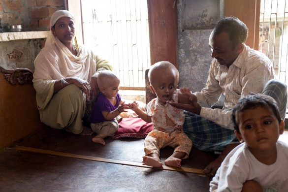 Mohammed Yakub, 35 with his family, sitting on the only piece of furniture they own. His three year old son, Tayammul has cerebral edema and is in extreme pain. He earns 80 cents a day and cannot afford his son's medical treatment.
